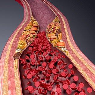 Arteriosklerose ist eine Systemerkrankung in den Schlagadern