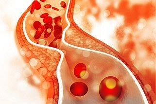 Definition einer Diät mit niedrigem Cholesterinspiegel