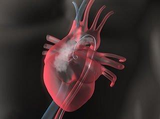 Herzkatheteruntersuchung in schematischer Darstellung