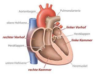 Kardiomyopathie in schematsicher Darstellungs des menschlichen Herzen
