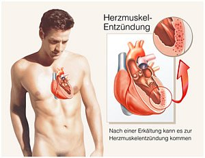 Myokarditis - Herzmuskelentzündung